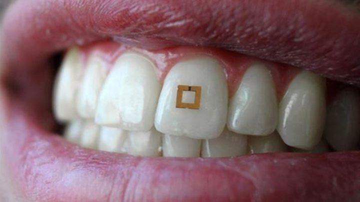 Зубные датчики смогут диагностировать заболевания на ранней стадии