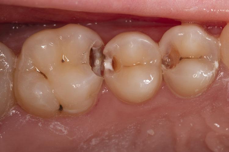 Поражение тканей зуба кариесом