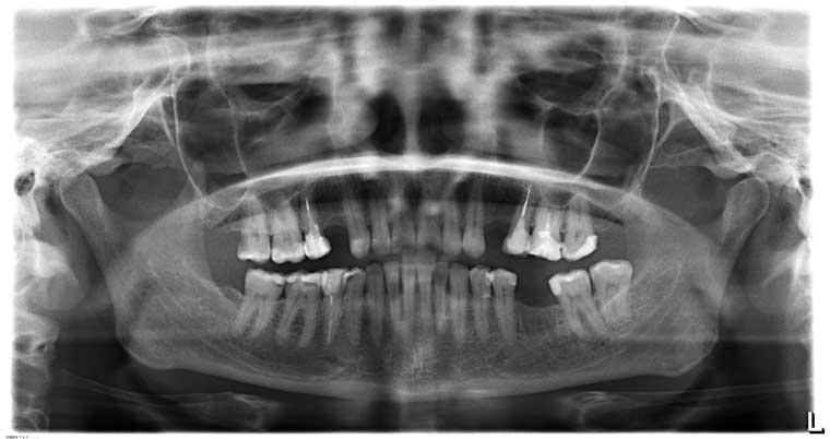 Панорамный снимок, что делать с зубом