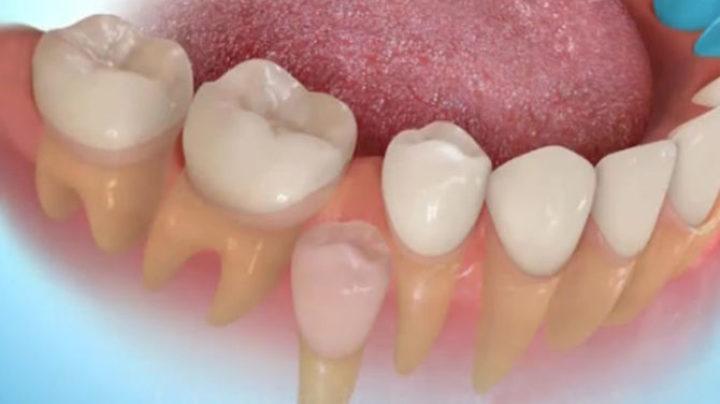 Вырастить новые зубы вместо утеряных