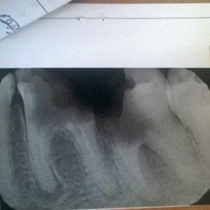 Снимок, разрушенные 36 и 37 зубы