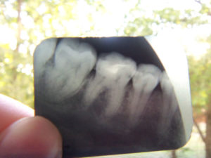 Сломалась фотопломба на 36-м зубе.