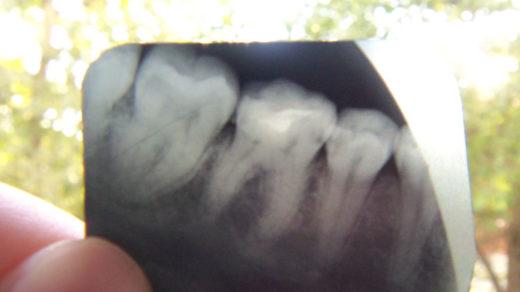 Сломалась фотопломба на 36-м зубе