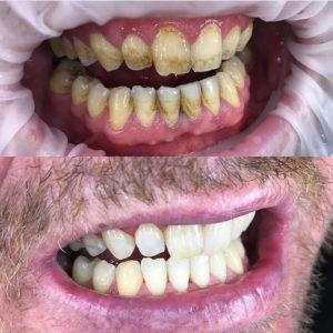 Какой профессионльной зубной отбеливающей пастой чистить зубы