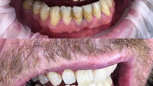Какую профессиональную абразивную пасту использовать с электрической зубной щёткой?
