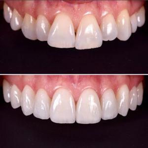 Обзор инстаграм виниров. Реставрация керамическими винирами, как альтернатива ортодонтическому лечению.