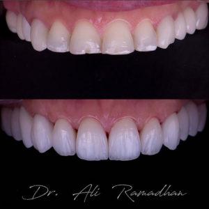 Тотальная реставрация зубов пострадавших от эрозии. Выраженный микрорельеф и естественность.