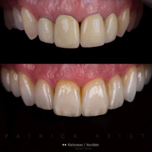 Обзор инстаграм виниров. Работа зубного техника, до и после. Идеальная естественность.
