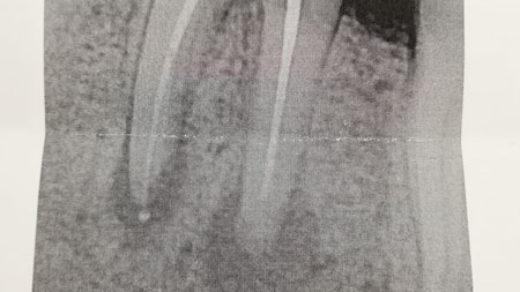 Хочется услышать мнения врачей, есть ли возможность спасти зуб