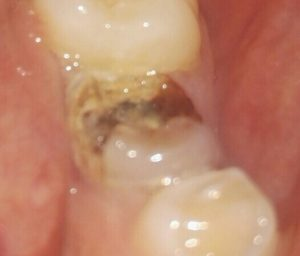 Разрушенный молочный зуб.