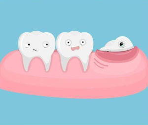 Прорезался зуб мудрости, удалять или нет?