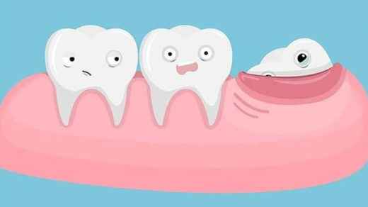 Удалять здоровый зуб мудрости или нет