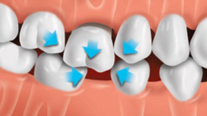После пломбировки появилась щель между верхним и нижним зубом