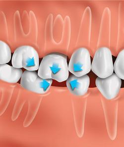 Естественное смещение зубов