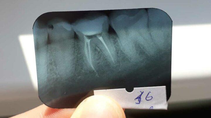 Боюсь, что в зубе остался инструмент